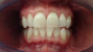 Photography Teeth 4650x2616 wallpaper